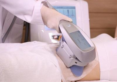 تجربتي مع عملية نحت الجسم بالفيزر