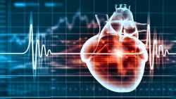 تكلفة عملية قسطرة القلب