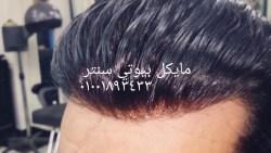 اسعار تركيب شعر طبيعي بالليزر