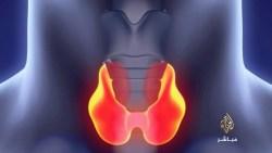كم يستغرق علاج نشاط الغدة الدرقية