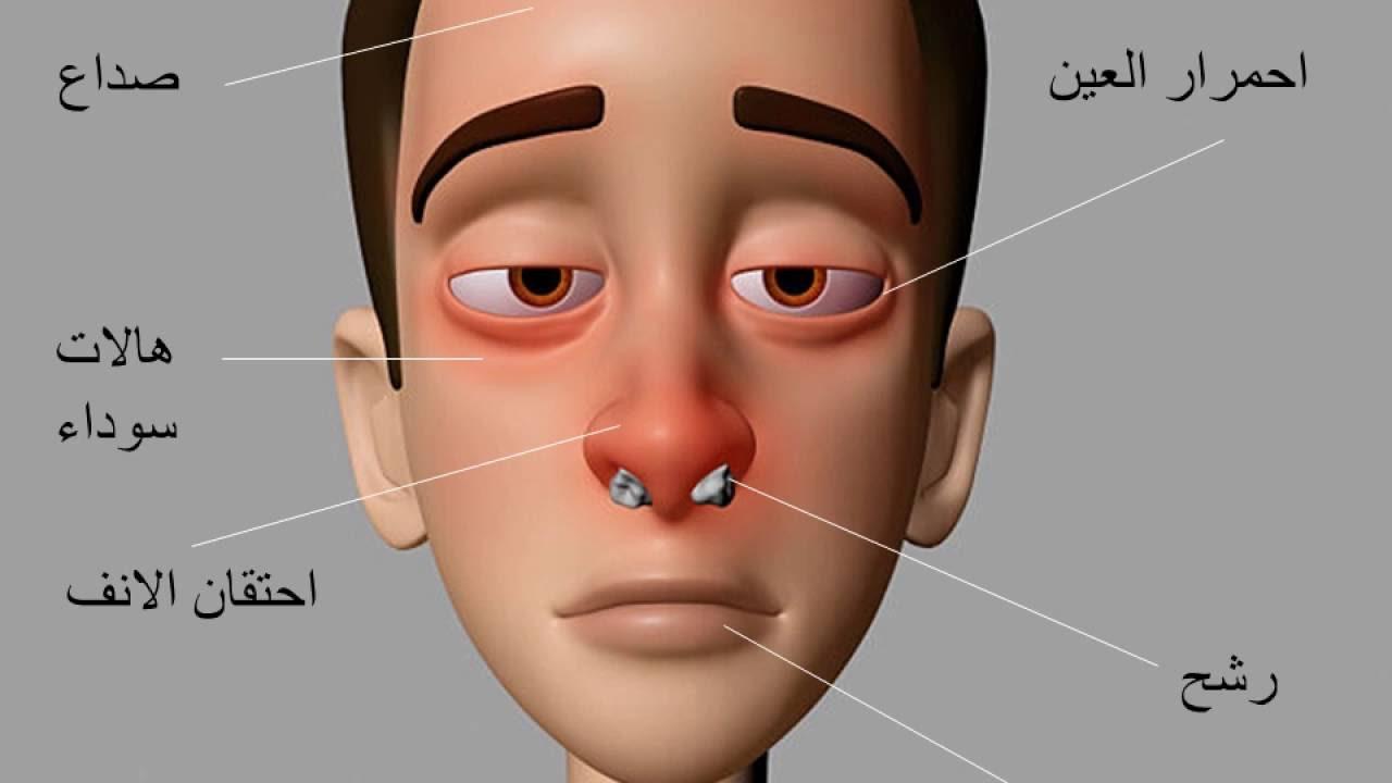 حساسية الانف الاعراض والعلاج | الرشاد برس