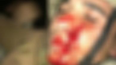 صورة بتر احد أصابع جندي في الجيش اللبناني في طرابلس !أهكذا يكافأ الجيش ؟