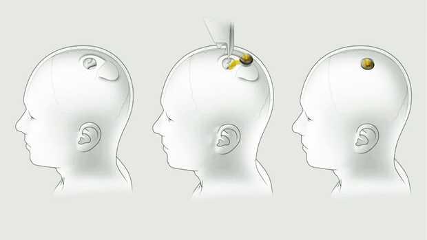 Neuralink: primer dispositivo funcional para leer el cerebro humano