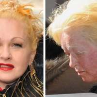 What happened to Cyndi Lauper's Face!!!