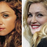 Madonna's Puffy Pillow Face Before and After