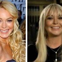 Lindsay Lohan's Plastic Surgery FAIL