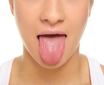 obat lidah kaku