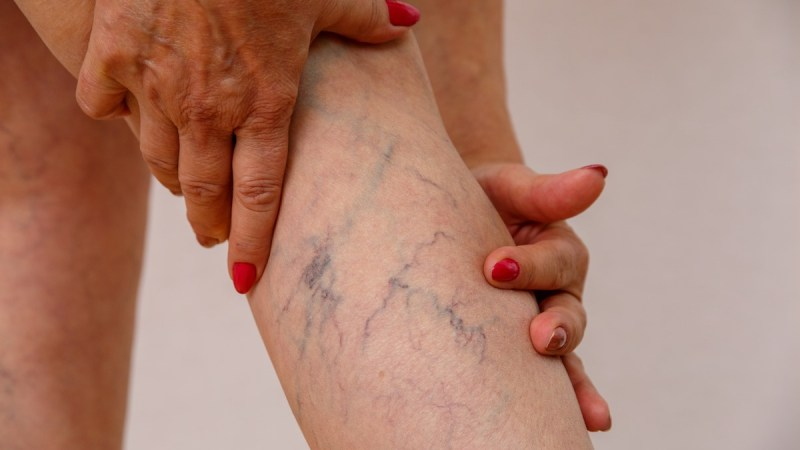 Trombosis: tener el cuerpo en movimiento es clave para evitar la formación de coágulos sanguíneos