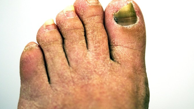 Six Ways to Prevent Toenail Fungus - Alternative Medicine Magazine