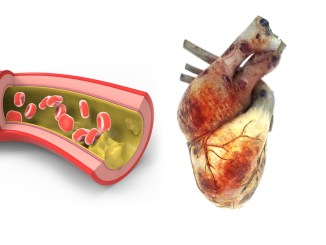 What is the relationship between diabetes and heart disease?