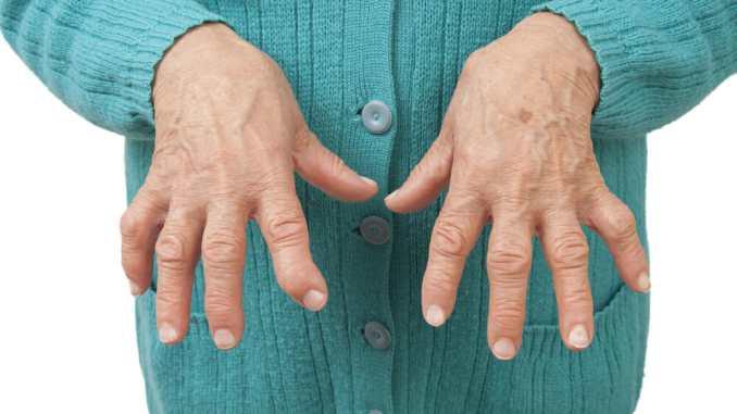 can vitamin D fight arthritis