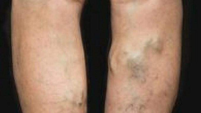 How to treat varicose veins