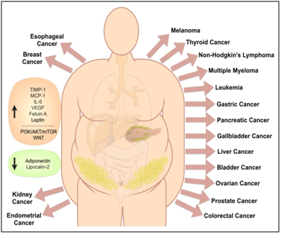 endometrial cancer and obesity