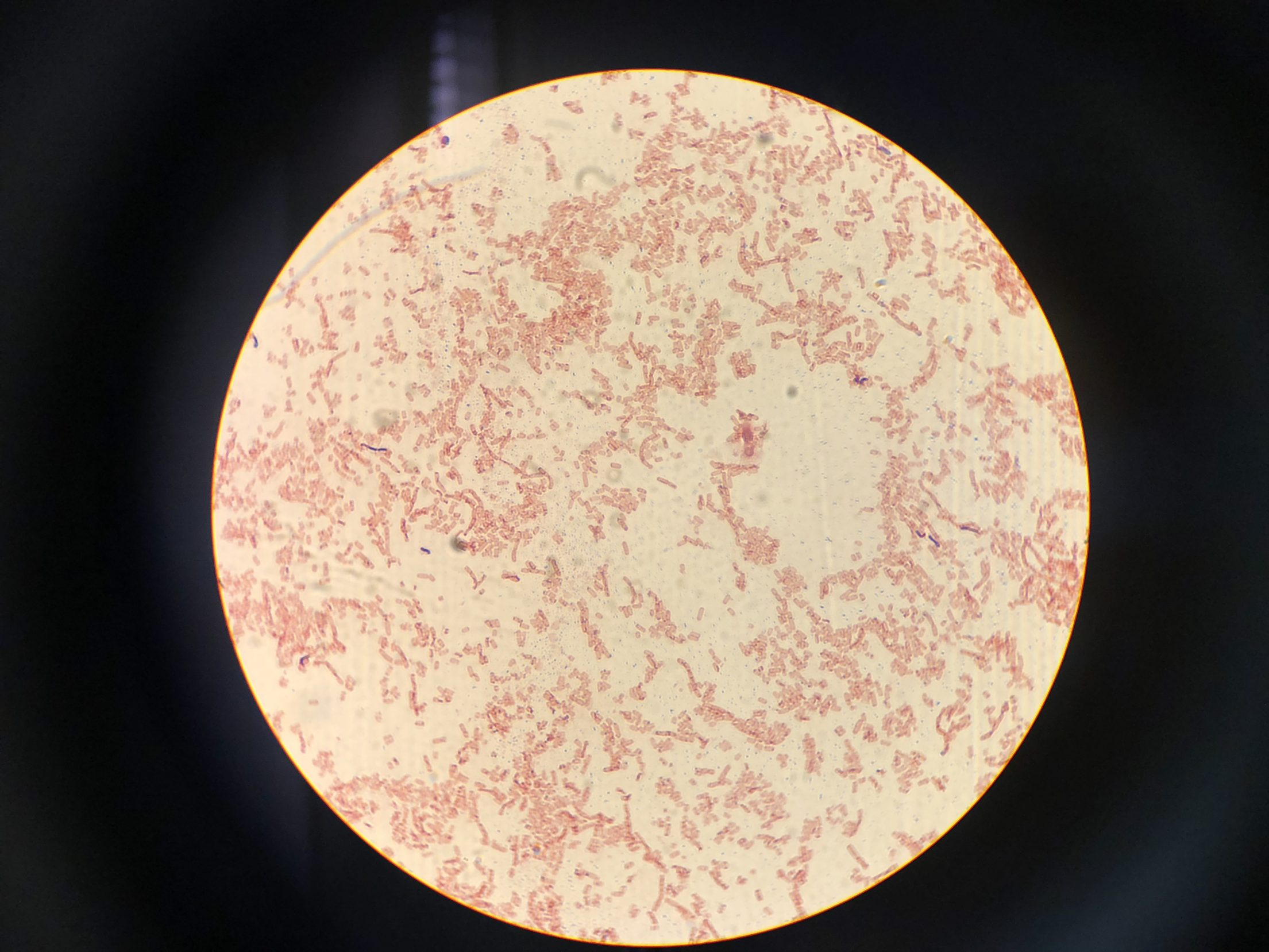 How to gram stain