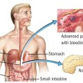Can celiac disease lead to pancreatic cancer inewswire info