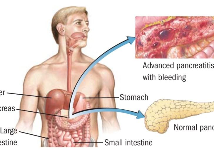 Can Celiac Disease Lead To Pancreatic Cancer