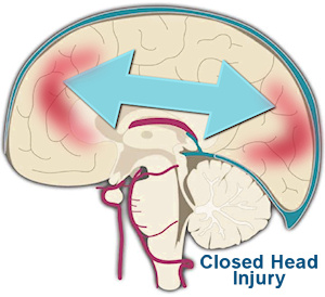 "Children:  Watch Closely for ""Closed"" Head Injury"