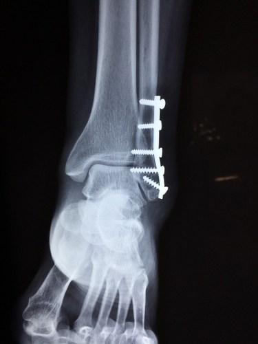 Heel Injury in Broadside Car Crash