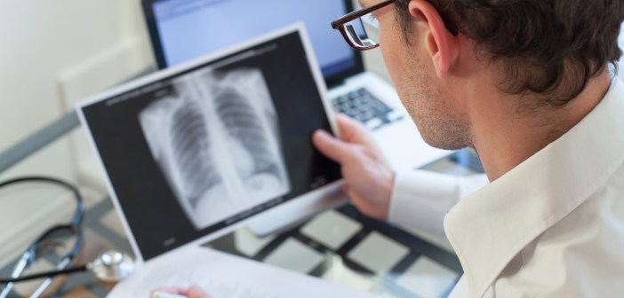 health xray lungs doctor