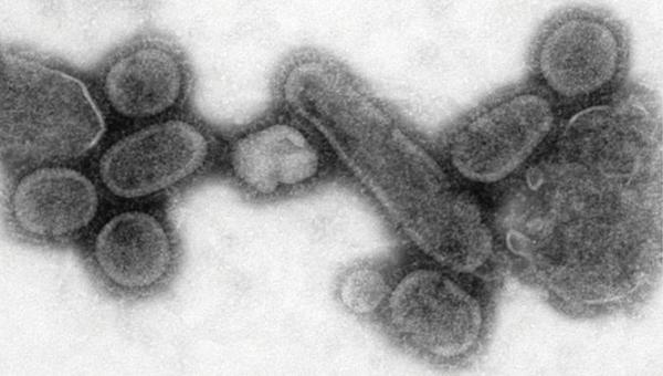 1918-Flu-strain