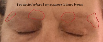 Image of missing eye brows