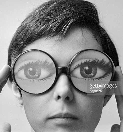 Photo Credit: Keystone, gettyimages.com, woman with abnormally large eyes.