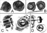 KRİSTALLE KAPLI KAYA Bu kaya parçasının üzeri doğal kristallerle kaplanmıştır.içinde bir boşluk bulunmuştur. Bu boşlukta, malzemesini metal ve porselenin oluşturduğu garip bir cisim bulunmuştur. Resim A : Kaya parçasının iki parçaya bölünmüş hali. Resim B : Taşın her iki yarısının iç kısmını görüyoruz. Resim C : Radiography tekniğiyle içindeki cismin resmi çekiliyor. Cisim o kadar eski olmasına rağmen metal bir yapıdadır. Bu cismin üzerinde meydana gelen ve onu kaplayan kristal oluşumlu kabuğun oluşabilmesi için 500.000 yıl (beş yüz bin yıl) geçmesi gerekiyor ! Resim D : Yan taraftan çekilen radiography resminde metal cismi daha ayrıntılı bir şekilde görüyoruz. Sonuç olarak bu garip cisim 500.000 yıl yaşındadır. Günümüzde bir şeye ait bir parça olsaydı ,çoktan ne olduğu tespit edilirdi.