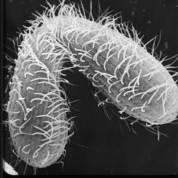 """1,2 Milyar yıl önce? 1,8 milyar ile 800 milyon yıl arası fosil kayıtlarının sıkıcı olduğu bir dönemdi ve bu döneme """"Sıkıcı Milyar"""" deniliyor. Ama arka planda birçok şey gerçekleşiyordu. Bunlardan biri de seksin ilk defa bu zamanda evrilme olasılığıdır. Neden ve ne zaman gerçekleştiği kesin olmasa da bazı organizmalar basitçe ikiye bölünmeyi bırakıp daha karmaşık olan seksle üremeye başladılar. Fakat 1,2 milyar yıl önceye dayandığı kesin olan şey ise kırmızı alg fosillerinde seksle üreyen spor hücrelerinin bulunduğuydu."""
