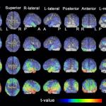 アルツハイマー病 脳の萎縮の進行過程