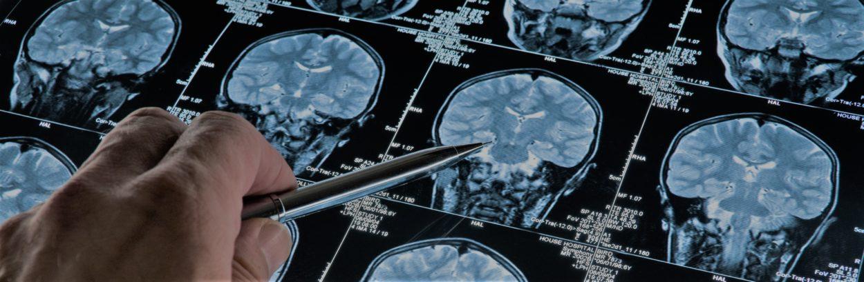 Semaine-du-cerveau2019