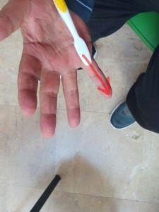 ejercicio4-hipersensibilidad-palma-de-la-mano