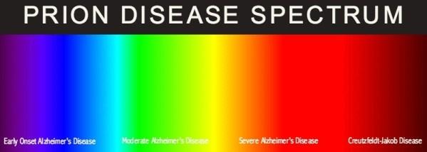 prion disease