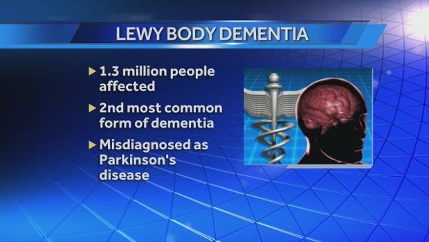 img-Lewy-Body-Dementia-5-14-14