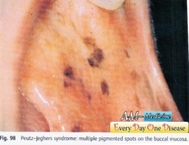 Every day one disease – Peutz Jeghers Syndrome