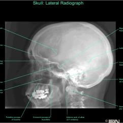 Bones Diagram Human Face Wiring For A Dual 4 Ohm Sub Anatomy Of Skull With Radiographic Land Marks | Am-medicine