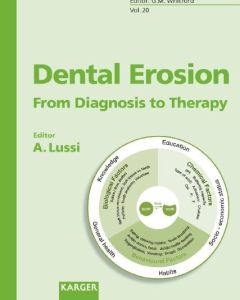 Dental Erosion From Diagnosis to Therapy PDF