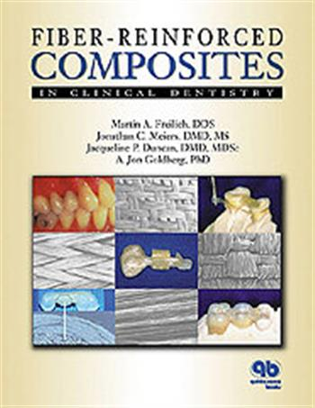Fiber-Reinforced Composites in Clinical Dentistry PDF