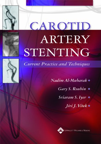 Carotid Artery Stenting Current Practice and Techniques PDF