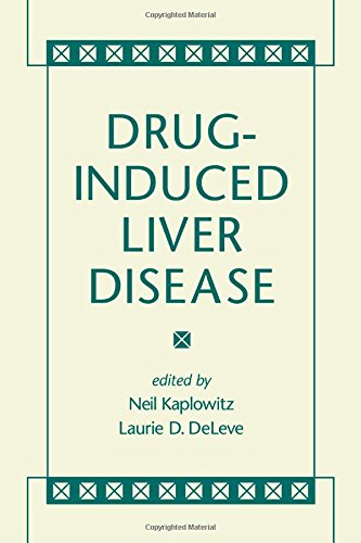 Drug-Induced Liver Disease PDF