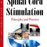 Spinal Cord Stimulation Principles and Practice PDF