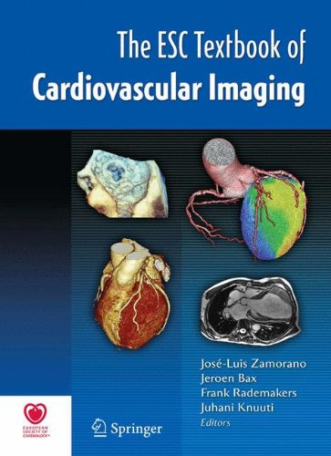The ESC Textbook of Cardiovascular Imaging PDF