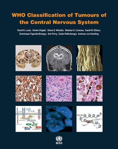 WHO Classification of Tumours of the Central Nervous System PDF
