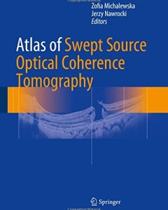 Atlas of Swept Source Optical Coherence Tomography PDF