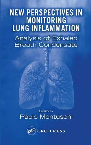 New Perspectives in Monitoring of Lung Inflammation PDF