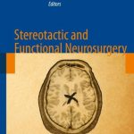 Stereotactic and Functional Neurosurgery PDF