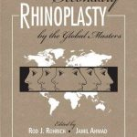 Secondary Rhinoplasty PDF