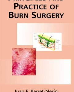 Principles and Practice of Burn Surgery PDF