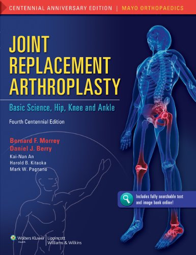 Joint Replacement Arthroplasty PDF