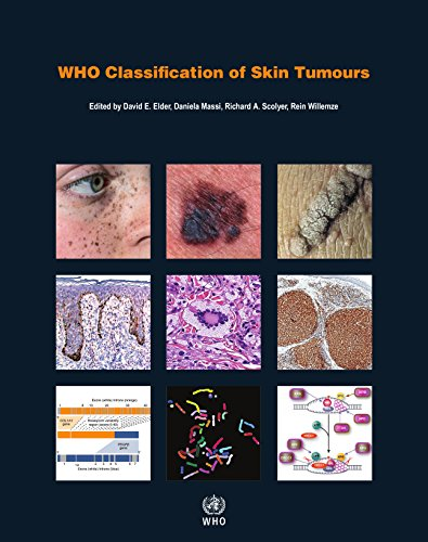 WHO Classification of Skin Tumours 4th Edition PDF