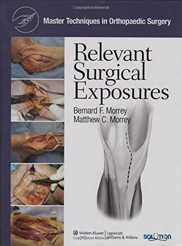 Master Techniques in Orthopaedic Surgery Relevant Surgical Exposures PDF
